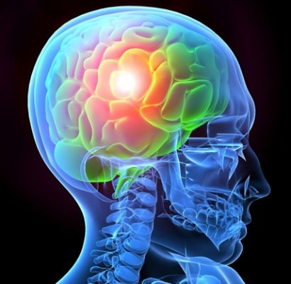 BrainInjury